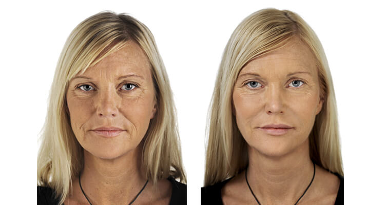 Cosmetic Injections before after